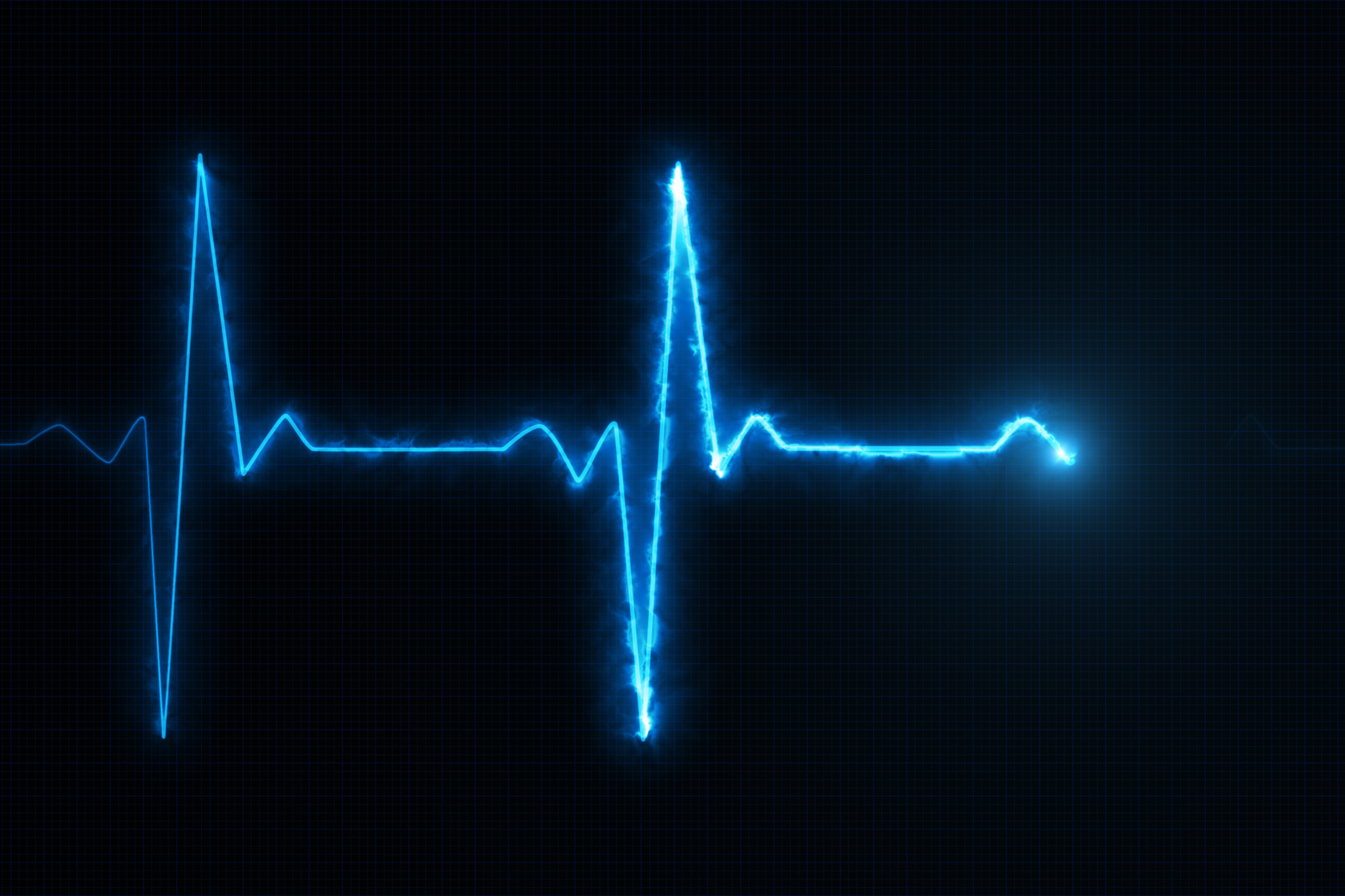 Electromyogram: Everything You Need to Know About Evaluating Your Pain