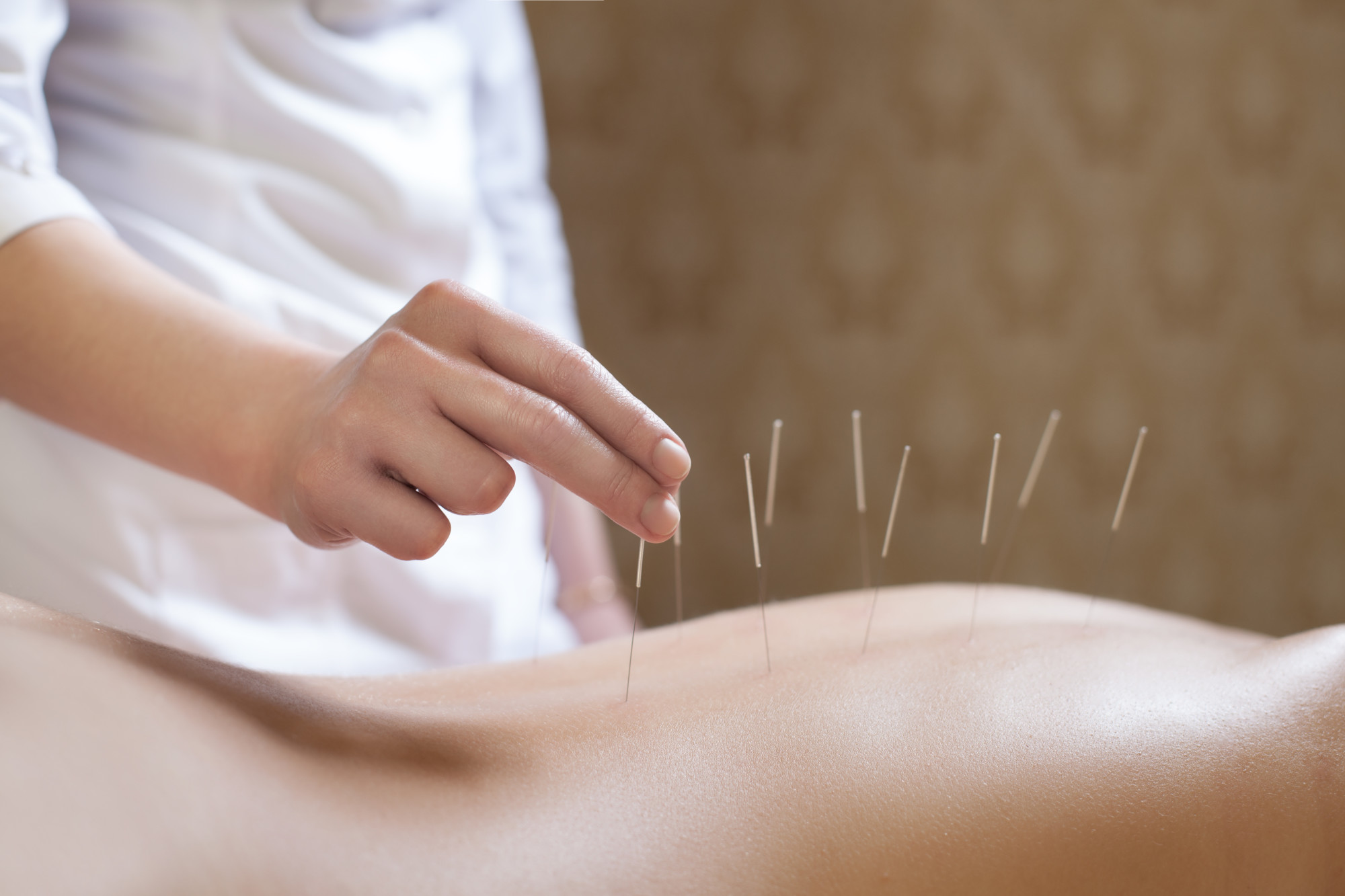 9 Impressive Health Benefits of Acupuncture